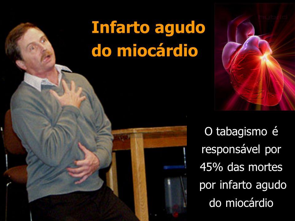 Infarto agudo do miocárdio O tabagismo é responsável por 45% das mortes por infarto agudo do miocárdio