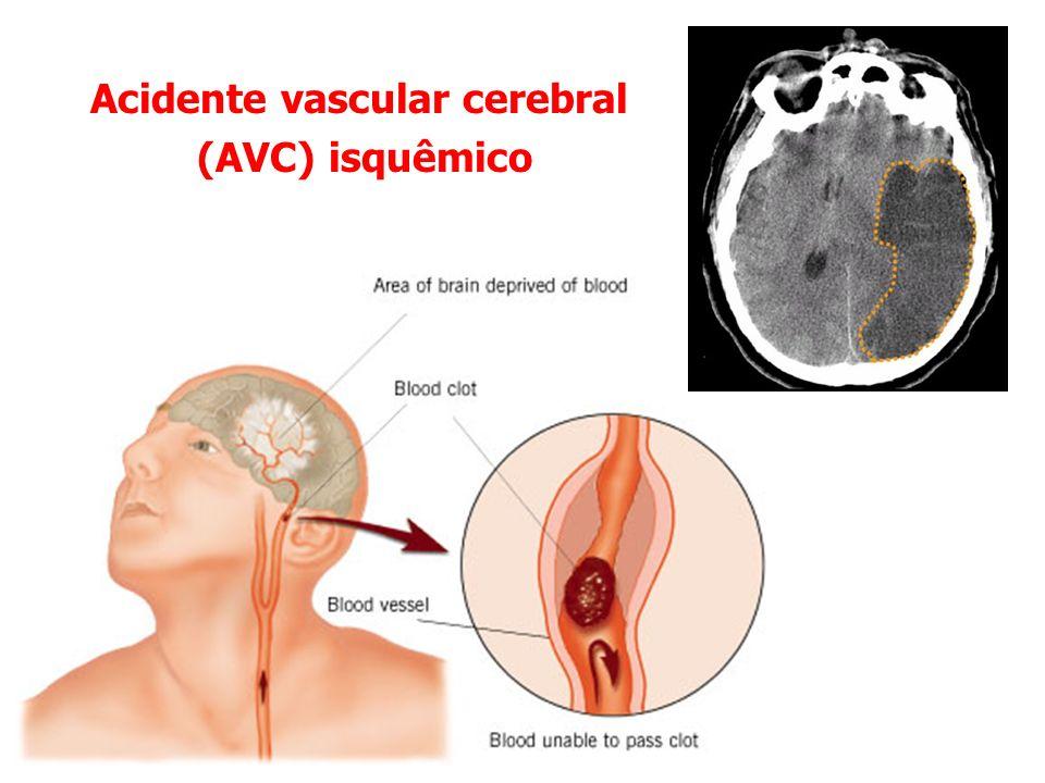 Acidente vascular cerebral (AVC) isquêmico