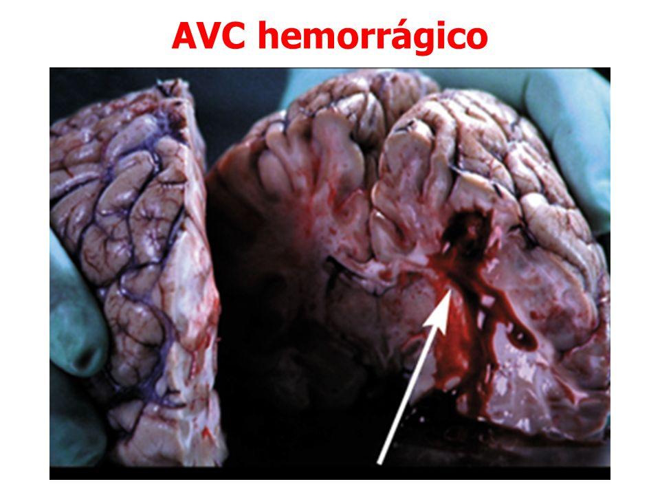AVC hemorrágico