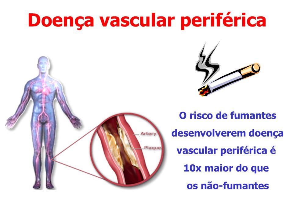 Doença vascular periférica O risco de fumantes desenvolverem doença vascular periférica é 10x maior do que os não-fumantes