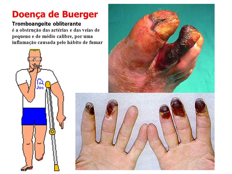 Doença de Buerger Tromboangeíte obliterante é a obstrução das artérias e das veias de pequeno e de médio calibre, por uma inflamação causada pelo hábi