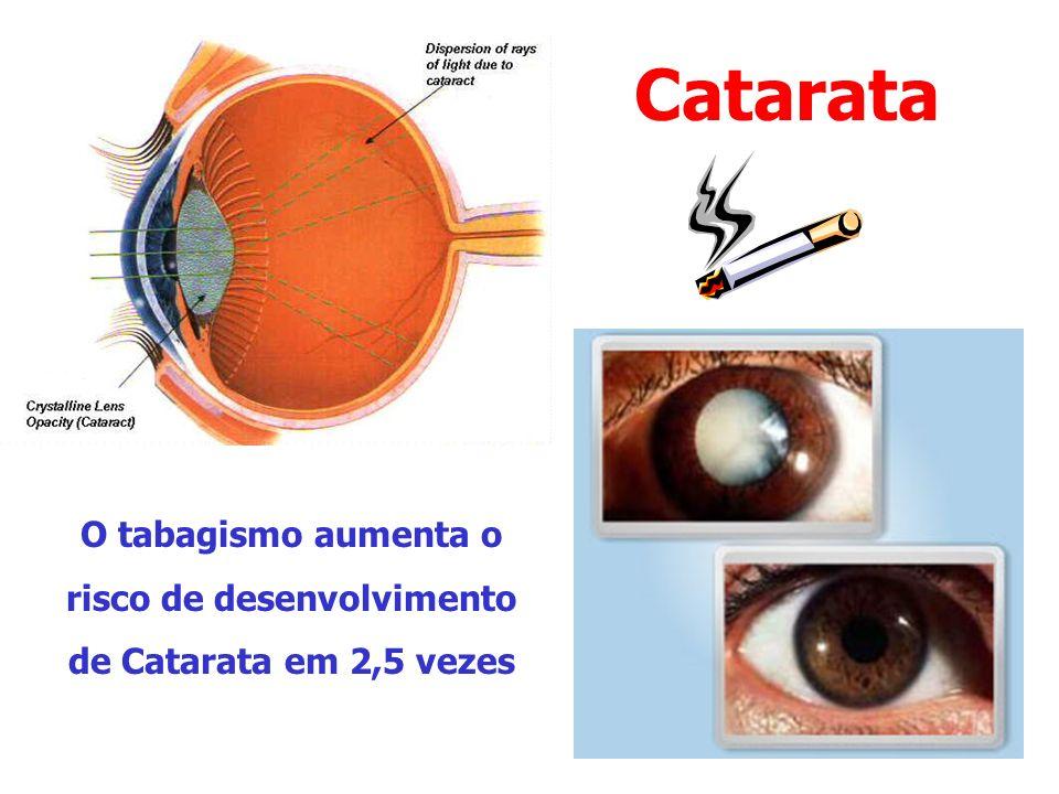 Catarata O tabagismo aumenta o risco de desenvolvimento de Catarata em 2,5 vezes