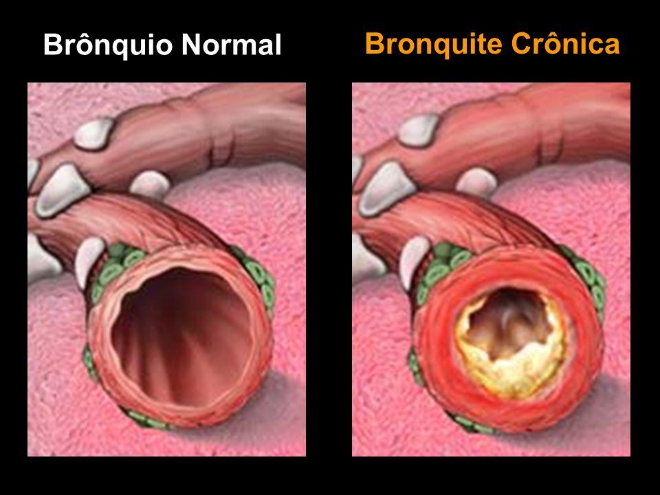 Brônquio Normal Bronquite Crônica