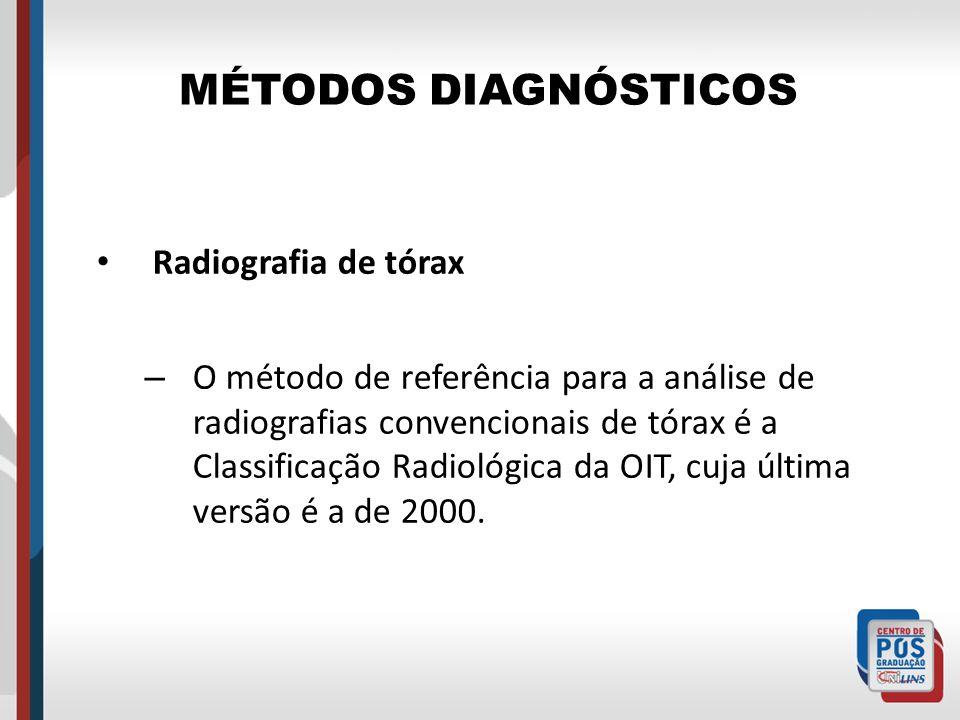 MÉTODOS DIAGNÓSTICOS Radiografia de tórax – O método de referência para a análise de radiografias convencionais de tórax é a Classificação Radiológica