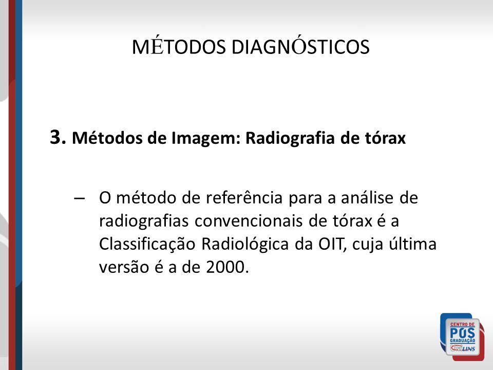 M É TODOS DIAGN Ó STICOS 3. Métodos de Imagem: Radiografia de tórax – O método de referência para a análise de radiografias convencionais de tórax é a