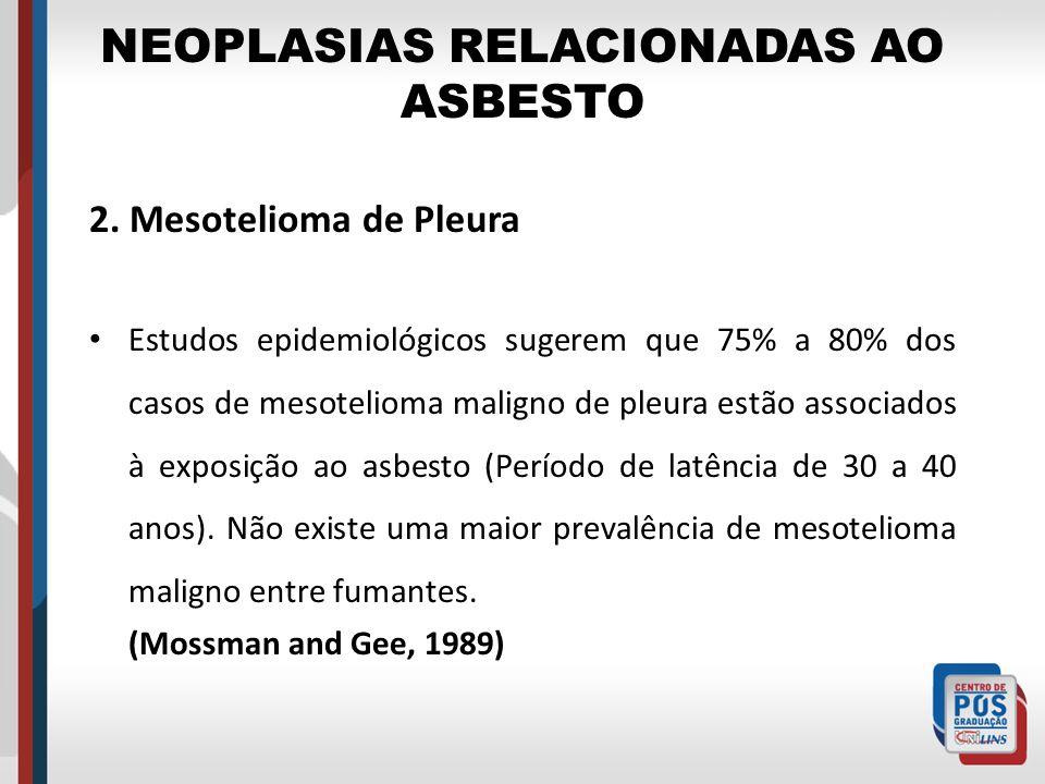 NEOPLASIAS RELACIONADAS AO ASBESTO 2. Mesotelioma de Pleura Estudos epidemiológicos sugerem que 75% a 80% dos casos de mesotelioma maligno de pleura e