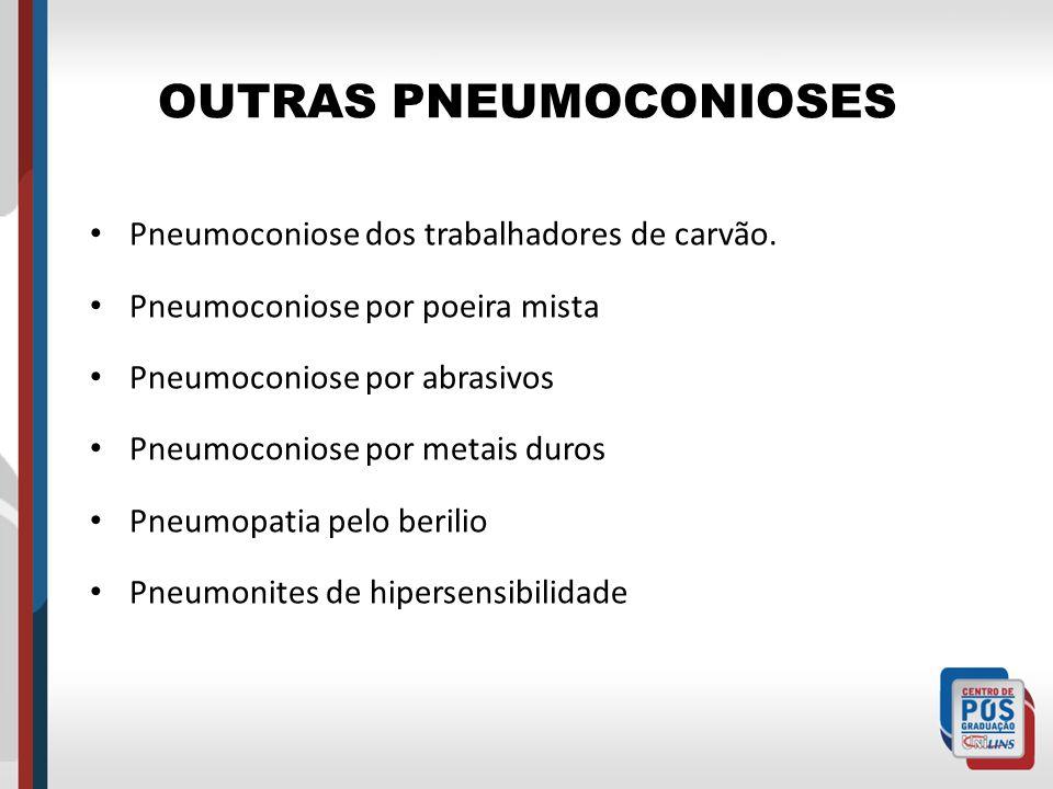 OUTRAS PNEUMOCONIOSES Pneumoconiose dos trabalhadores de carvão. Pneumoconiose por poeira mista Pneumoconiose por abrasivos Pneumoconiose por metais d