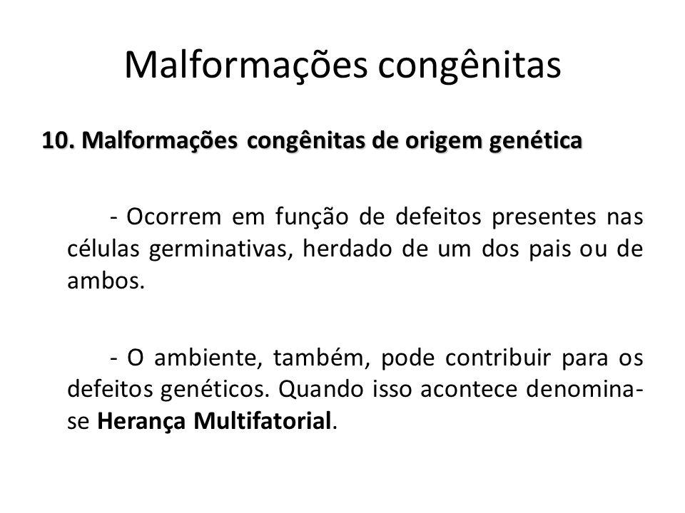 10. Malformações congênitas de origem genética - Ocorrem em função de defeitos presentes nas células germinativas, herdado de um dos pais ou de ambos.