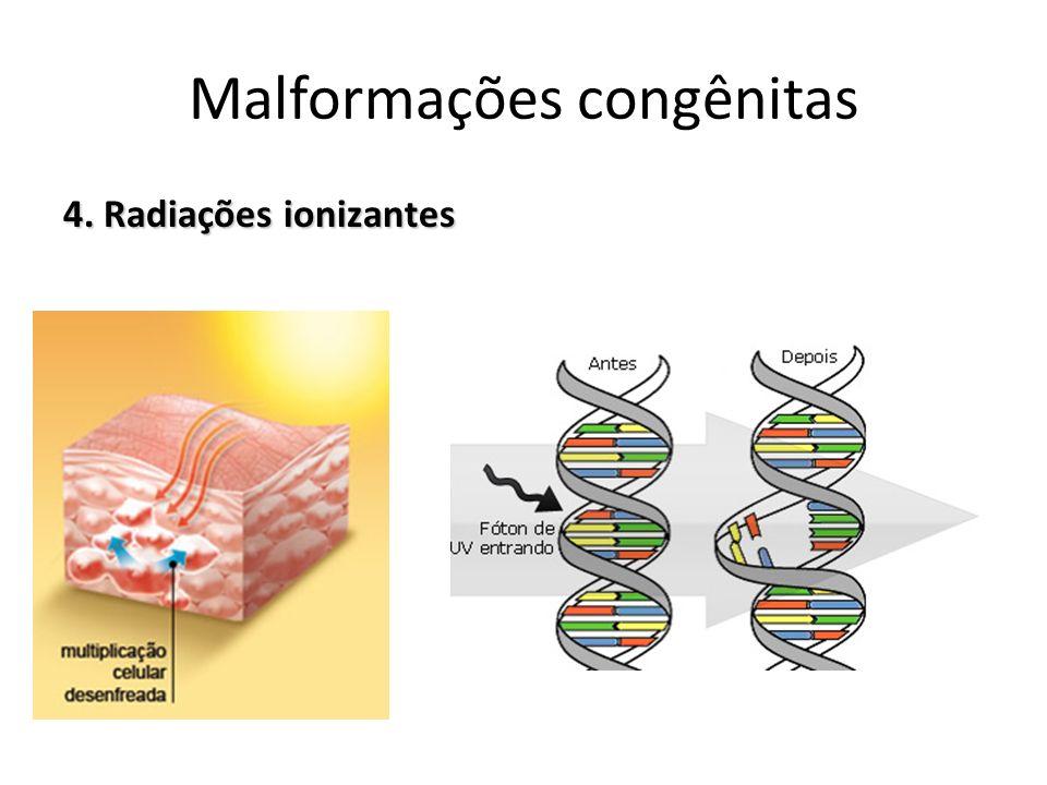 4. Radiações ionizantes Malformações congênitas