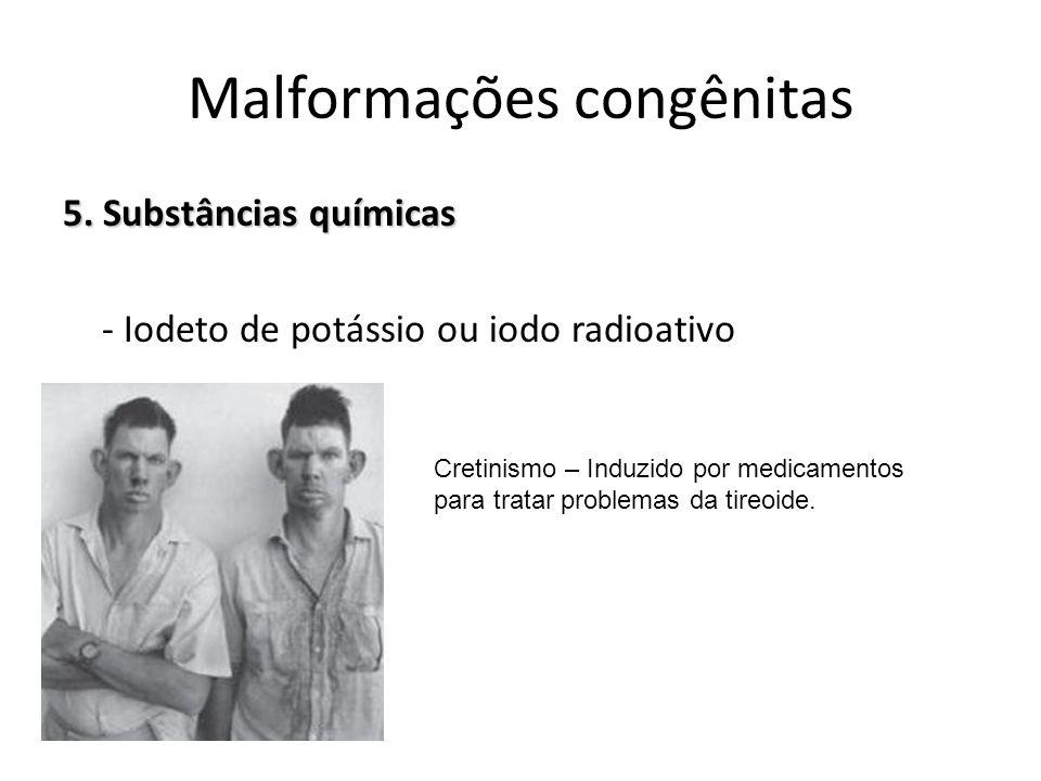 5. Substâncias químicas - Iodeto de potássio ou iodo radioativo Malformações congênitas Cretinismo – Induzido por medicamentos para tratar problemas d