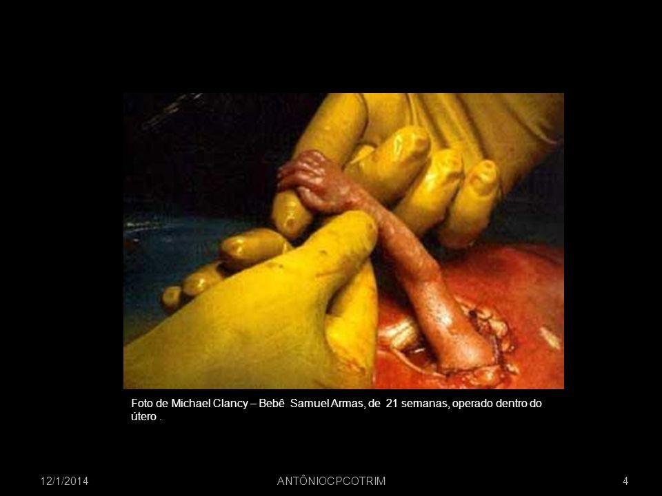 12/1/2014 ANTÔNIOCPCOTRIM 4 Foto de Michael Clancy – Bebê Samuel Armas, de 21 semanas, operado dentro do útero.