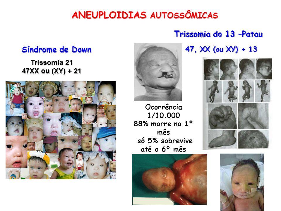 ANEUPLOIDIAS AUTOSSÔMICAS Síndrome de Down Trissomia do 13 –Patau Ocorrência 1/10.000 88% morre no 1º mês só 5% sobrevive até o 6º mês 47, XX (ou XY)