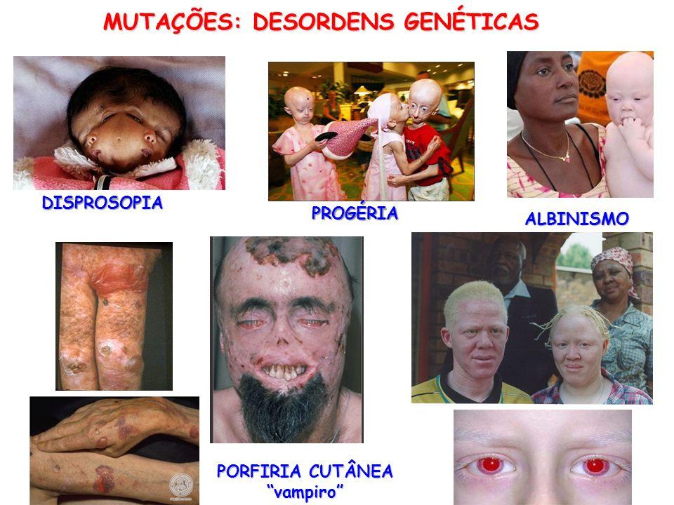 MUTAÇÕES: DESORDENS GENÉTICAS DISPROSOPIA PROGÉRIA PORFIRIA CUTÂNEA vampiro ALBINISMO