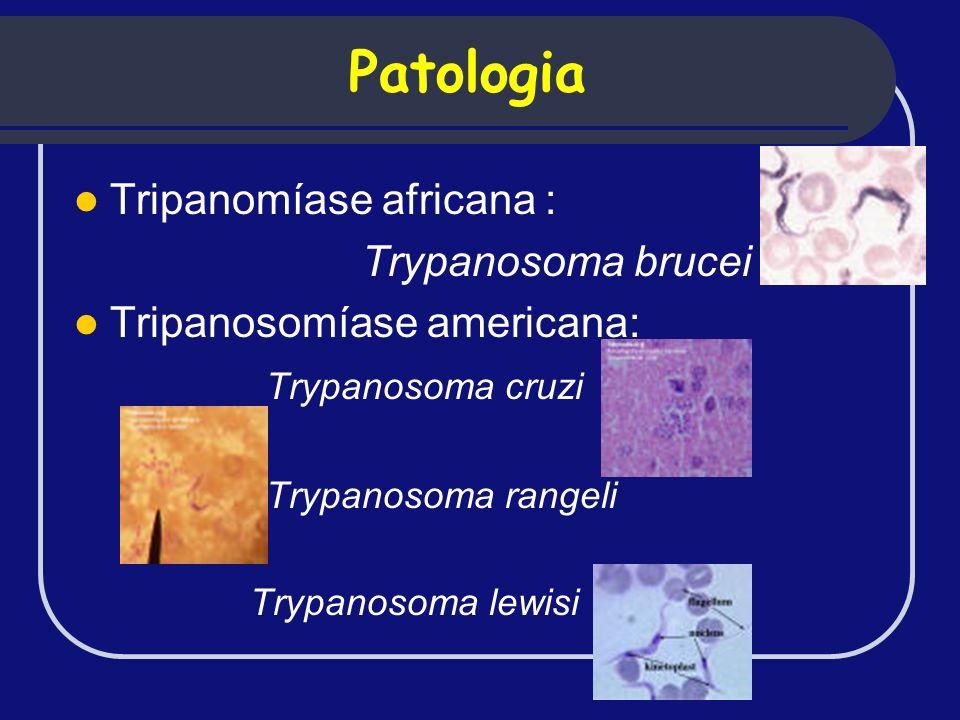 Patologia Tripanomíase africana : Trypanosoma brucei Tripanosomíase americana: Trypanosoma cruzi Trypanosoma rangeli Trypanosoma lewisi