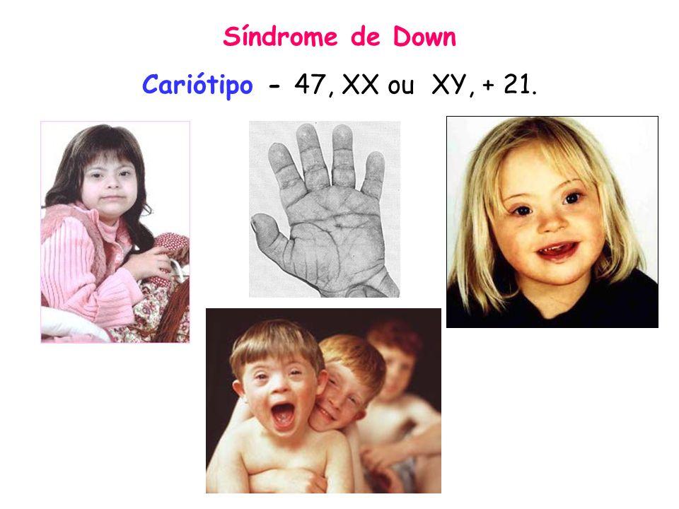 Síndrome de Down Cariótipo - 47, XX ou XY, + 21.
