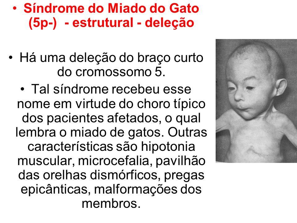 Síndrome do Miado do Gato (5p-) - estrutural - deleção Há uma deleção do braço curto do cromossomo 5. Tal síndrome recebeu esse nome em virtude do cho