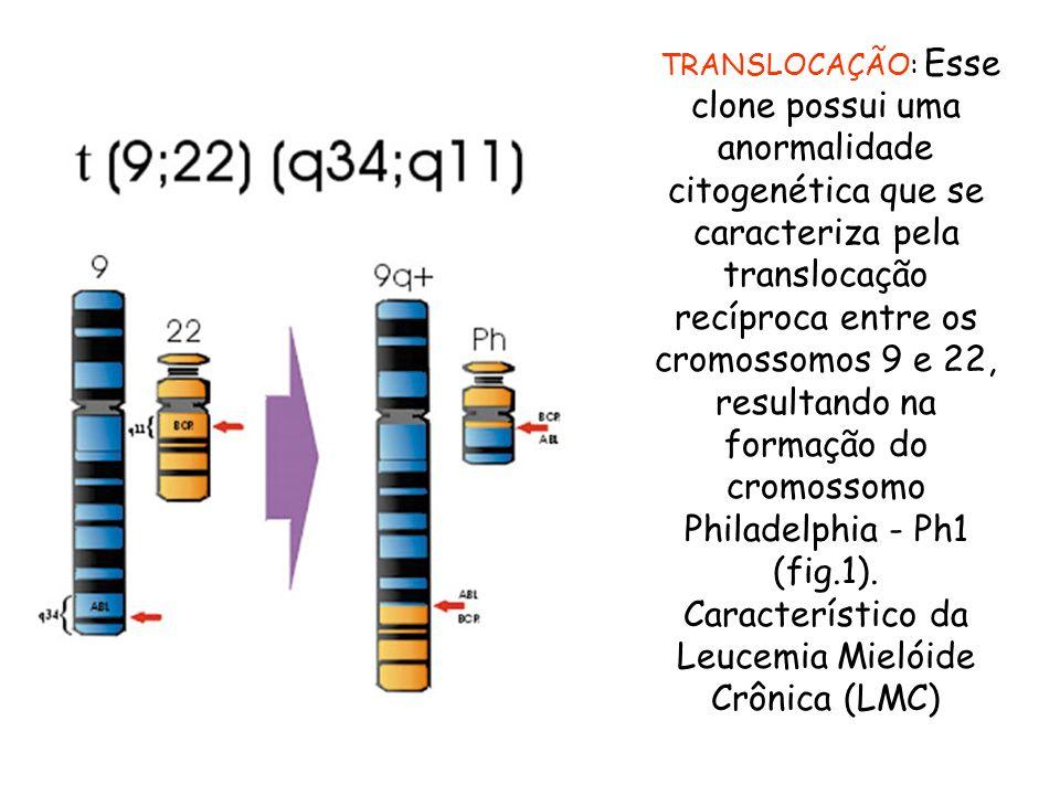 TRANSLOCAÇÃO: Esse clone possui uma anormalidade citogenética que se caracteriza pela translocação recíproca entre os cromossomos 9 e 22, resultando n