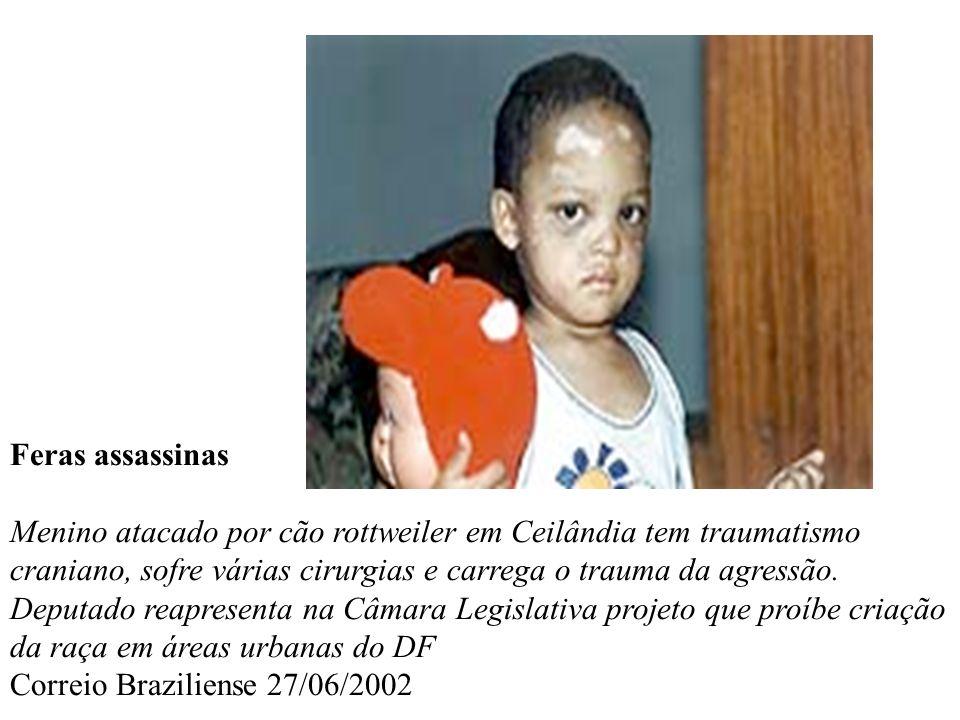 Feras assassinas Menino atacado por cão rottweiler em Ceilândia tem traumatismo craniano, sofre várias cirurgias e carrega o trauma da agressão. Deput