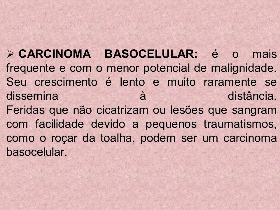 CARCINOMA BASOCELULAR: é o mais frequente e com o menor potencial de malignidade. Seu crescimento é lento e muito raramente se dissemina à distância.