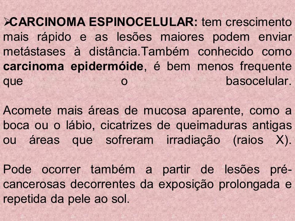 CARCINOMA ESPINOCELULAR: tem crescimento mais rápido e as lesões maiores podem enviar metástases à distância.Também conhecido como carcinoma epidermói