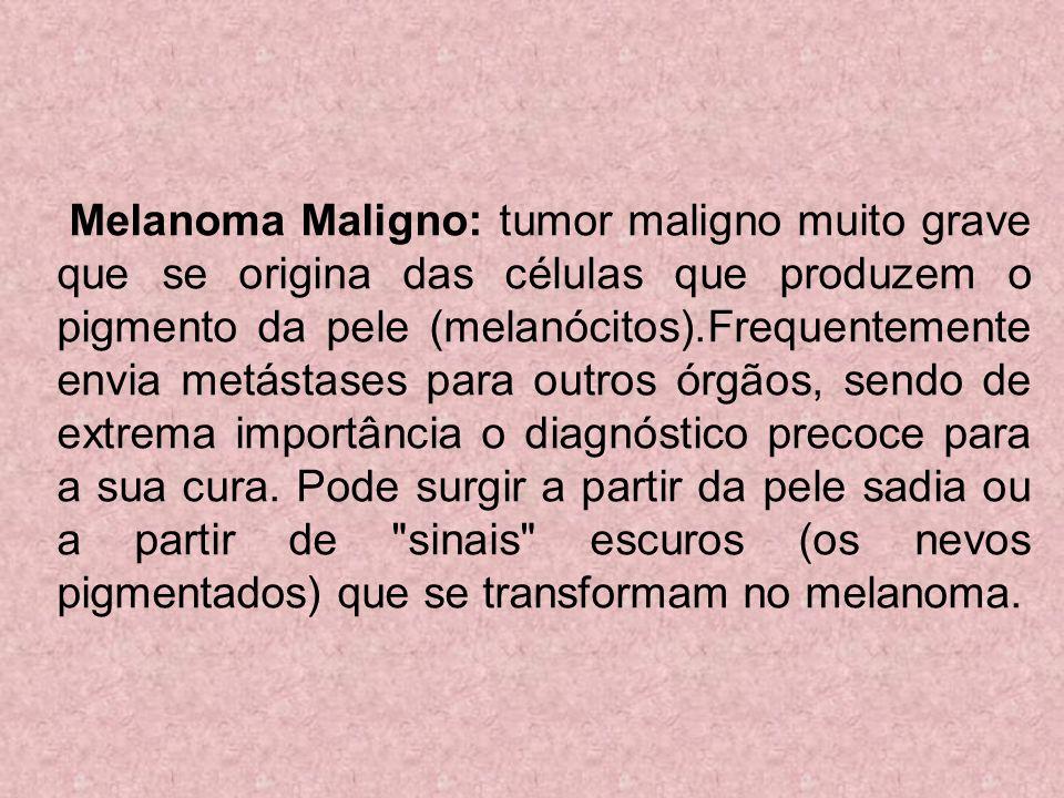 Melanoma Maligno: tumor maligno muito grave que se origina das células que produzem o pigmento da pele (melanócitos).Frequentemente envia metástases p