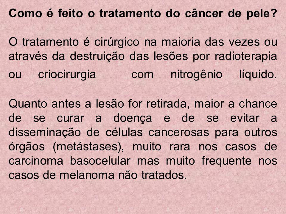 Como é feito o tratamento do câncer de pele? O tratamento é cirúrgico na maioria das vezes ou através da destruição das lesões por radioterapia ou cri