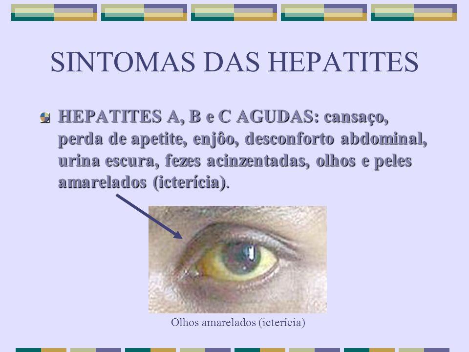 SINTOMAS DAS HEPATITES HEPATITES A, B e C AGUDAS: cansaço, perda de apetite, enjôo, desconforto abdominal, urina escura, fezes acinzentadas, olhos e p