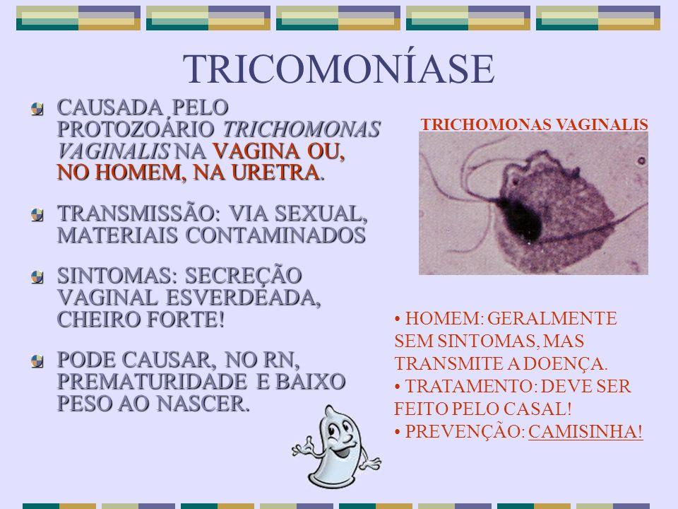 TRICOMONÍASE CAUSADA PELO PROTOZOÁRIO TRICHOMONAS VAGINALIS NA VAGINA OU, NO HOMEM, NA URETRA. TRANSMISSÃO: VIA SEXUAL, MATERIAIS CONTAMINADOS SINTOMA