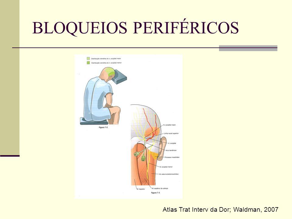 BLOQUEIOS PERIFÉRICOS Atlas Trat Interv da Dor; Waldman, 2007