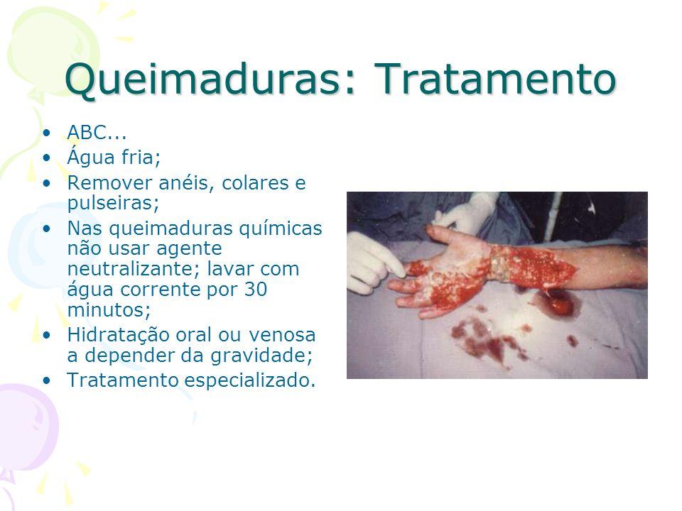 Queimaduras: Tratamento ABC... Água fria; Remover anéis, colares e pulseiras; Nas queimaduras químicas não usar agente neutralizante; lavar com água c