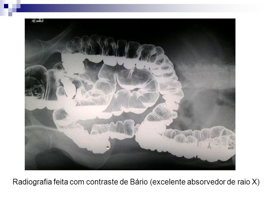 Radiografia feita com contraste de Bário (excelente absorvedor de raio X)