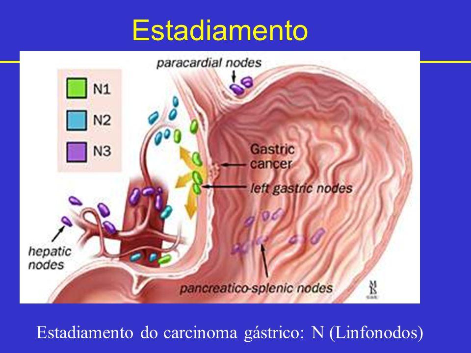 Estadiamento Estadiamento do carcinoma gástrico: N (Linfonodos)