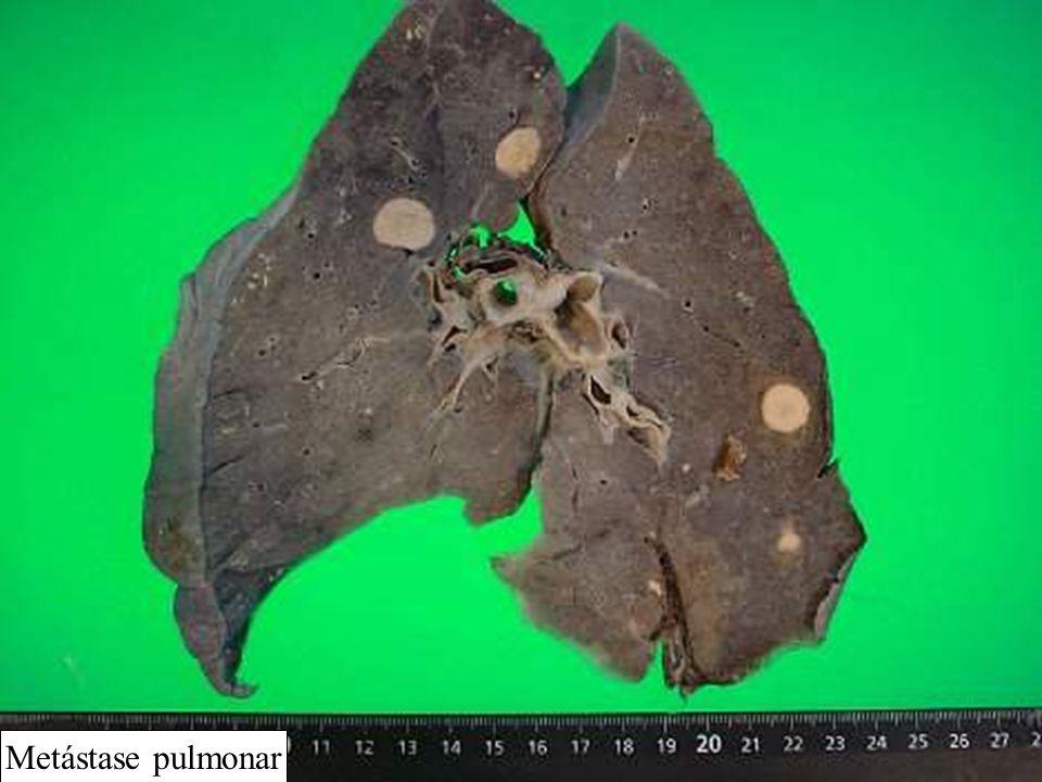 Metástase pulmonar