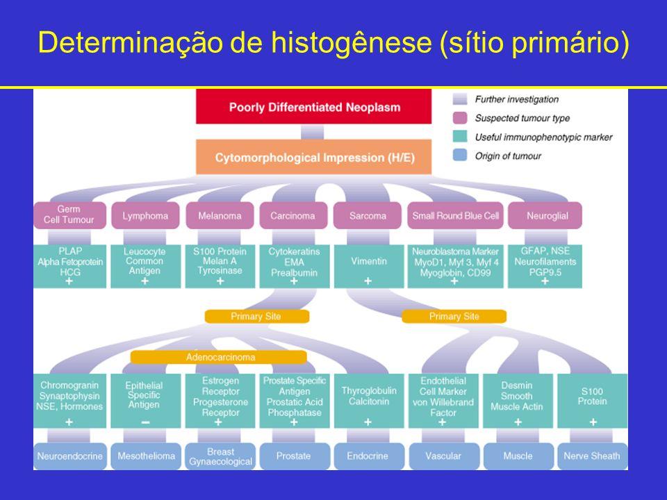 Determinação de histogênese (sítio primário)