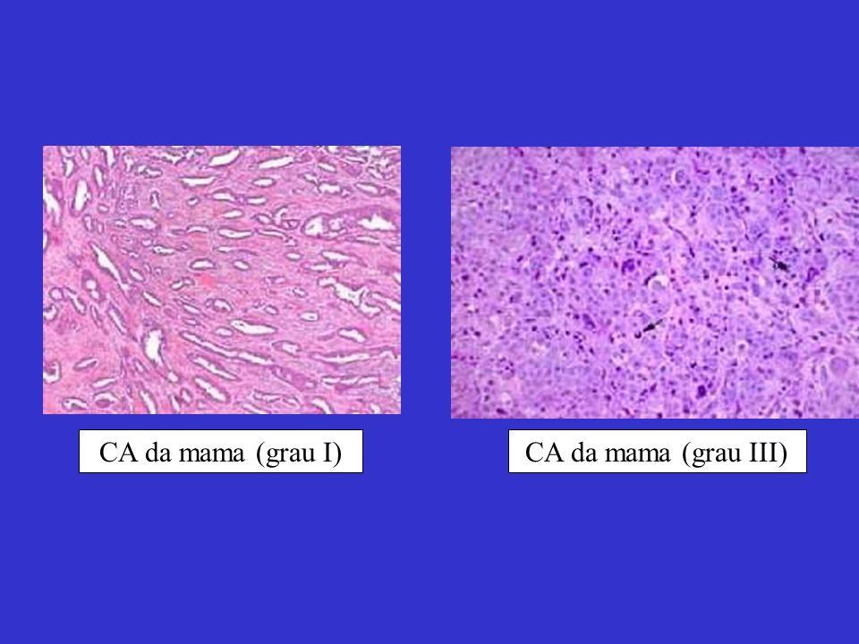 CA da mama (grau I)CA da mama (grau III)