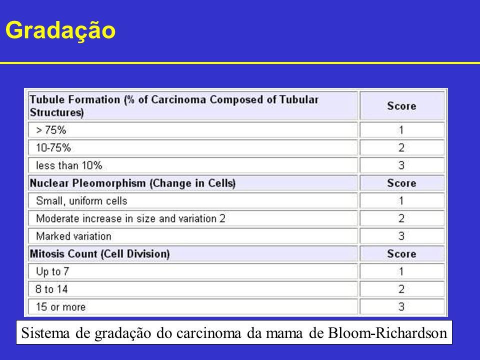 Sistema de gradação do carcinoma da mama de Bloom-Richardson Gradação