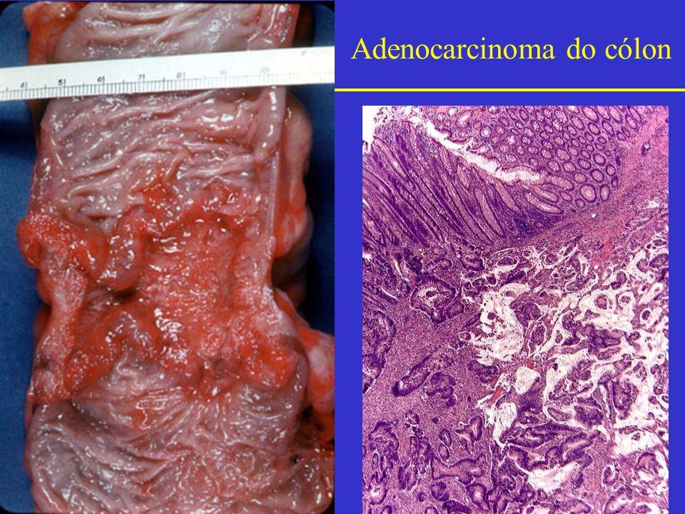 Adenocarcinoma do cólon