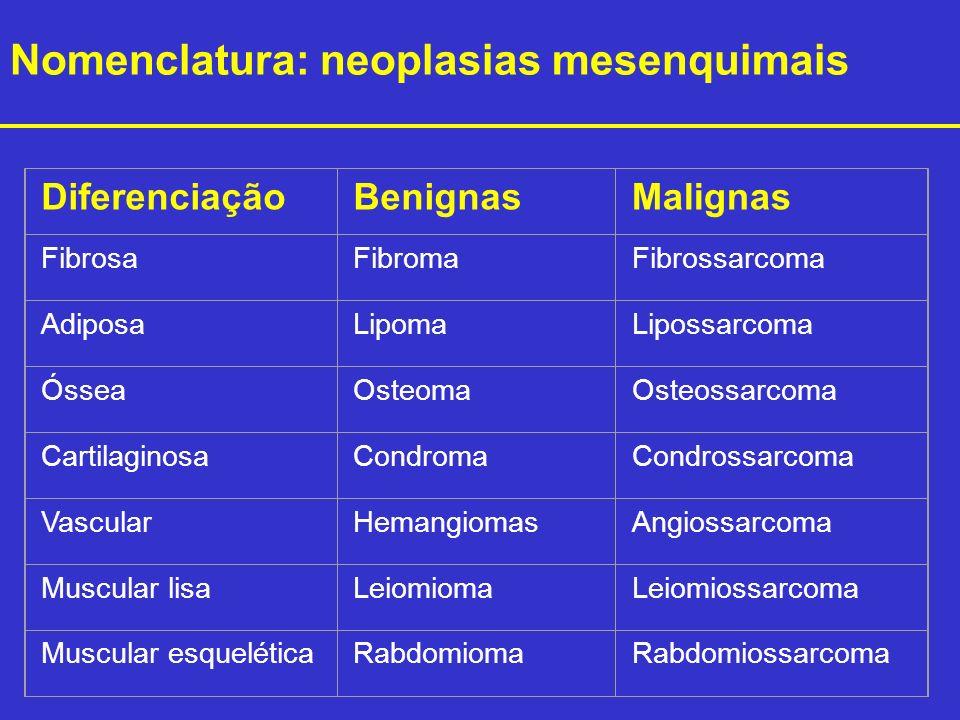 DiferenciaçãoBenignasMalignas FibrosaFibromaFibrossarcoma AdiposaLipomaLipossarcoma ÓsseaOsteomaOsteossarcoma CartilaginosaCondromaCondrossarcoma Vasc