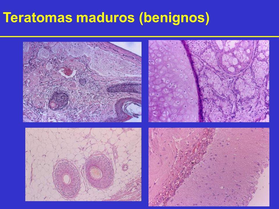 Teratomas maduros (benignos)