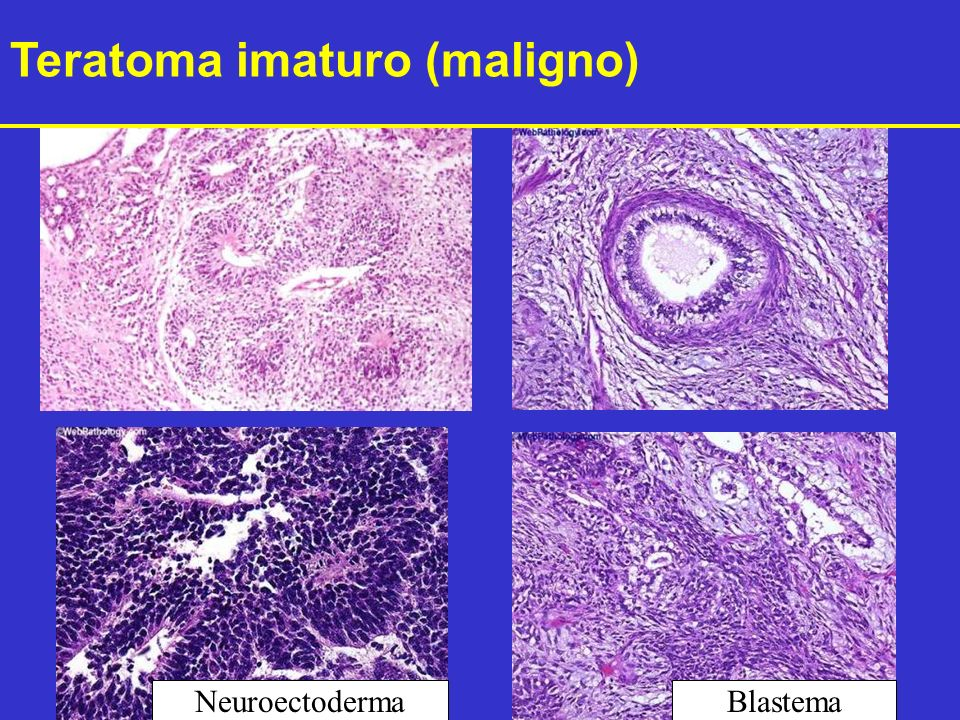 BlastemaNeuroectoderma