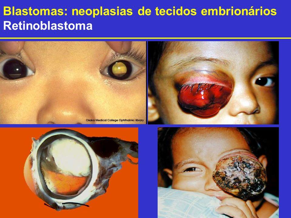 Blastomas: neoplasias de tecidos embrionários Retinoblastoma