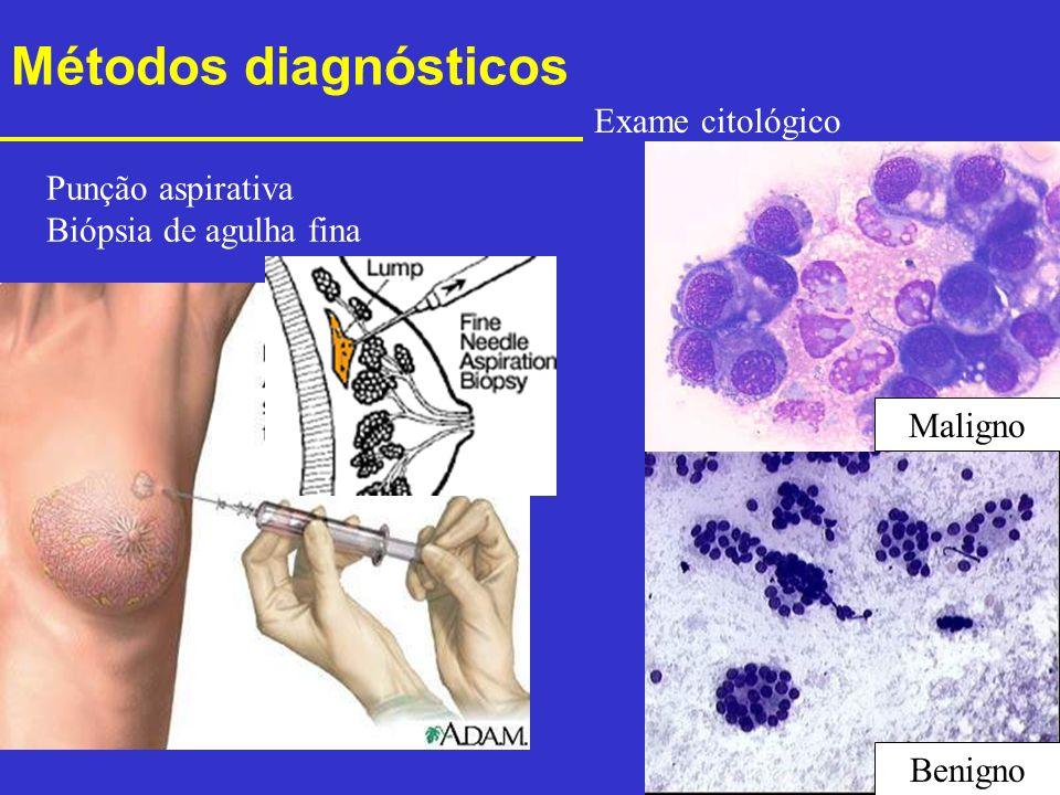 Métodos diagnósticos Punção aspirativa Biópsia de agulha fina Exame citológico Maligno Benigno