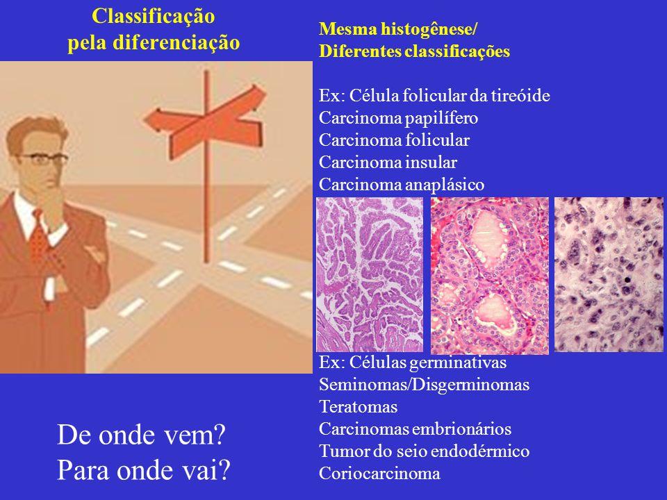 Classificação pela diferenciação De onde vem? Para onde vai? Mesma histogênese/ Diferentes classificações Ex: Célula folicular da tireóide Carcinoma p