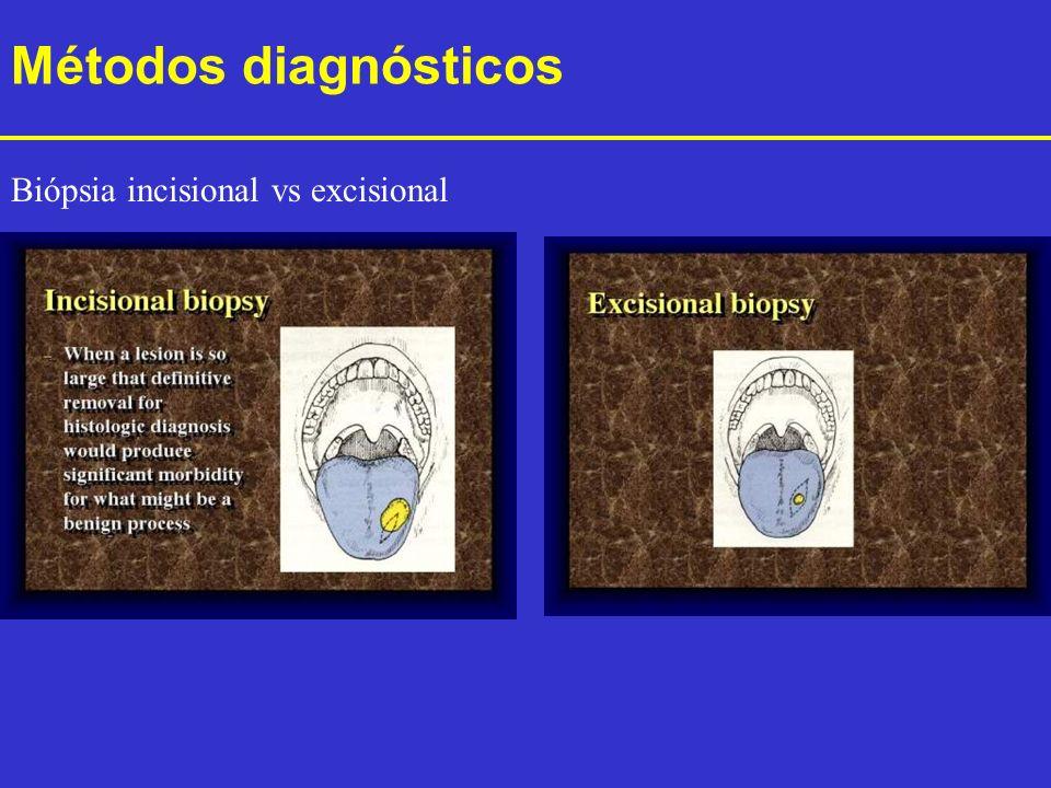 Métodos diagnósticos Biópsia incisional vs excisional