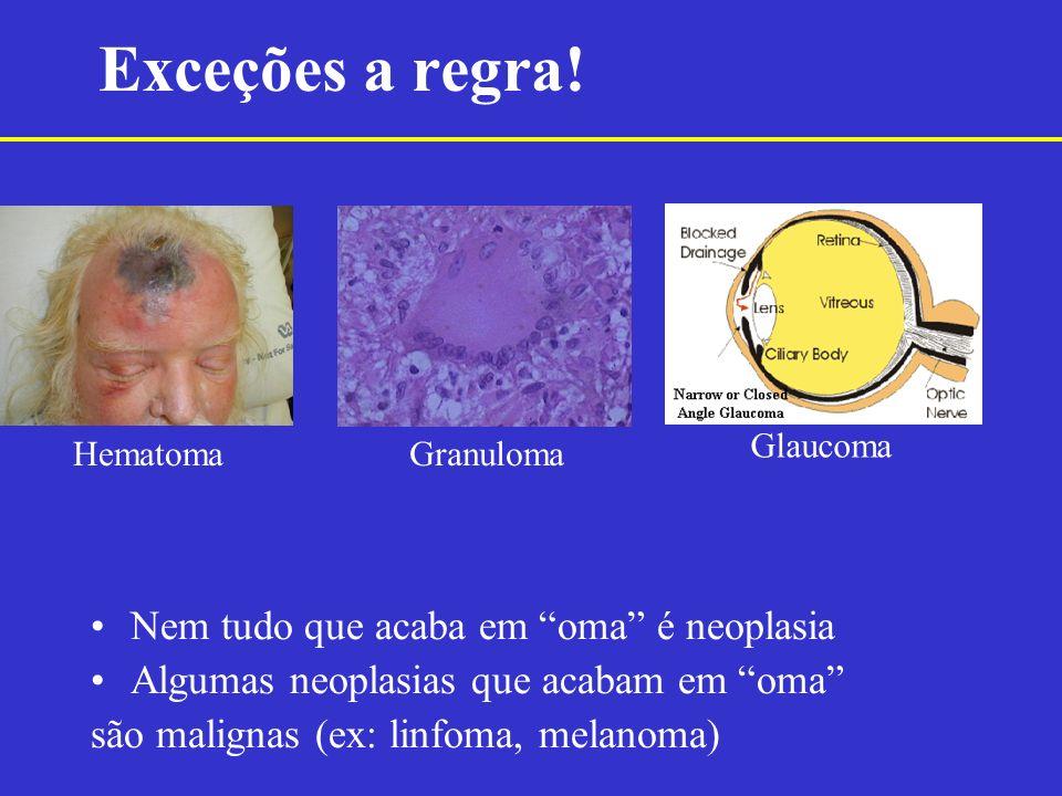 Nem tudo que acaba em oma é neoplasia Algumas neoplasias que acabam em oma são malignas (ex: linfoma, melanoma) Exceções a regra! HematomaGranuloma Gl