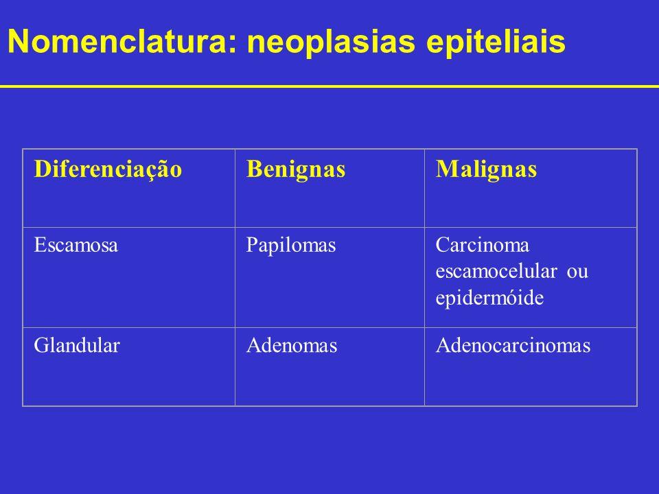 Nomenclatura: neoplasias epiteliais DiferenciaçãoBenignasMalignas EscamosaPapilomasCarcinoma escamocelular ou epidermóide GlandularAdenomasAdenocarcin