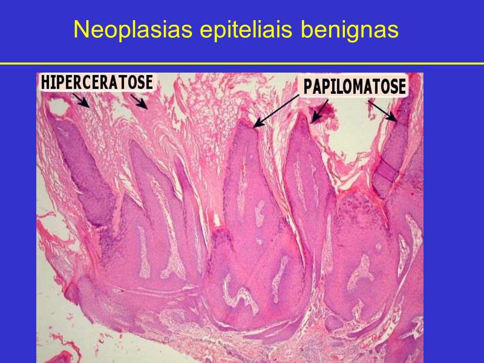 Neoplasias epiteliais benignas