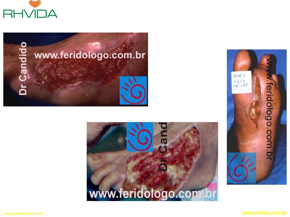 Copyright © RHVIDA S/C Ltda. www.rhvida.com.br