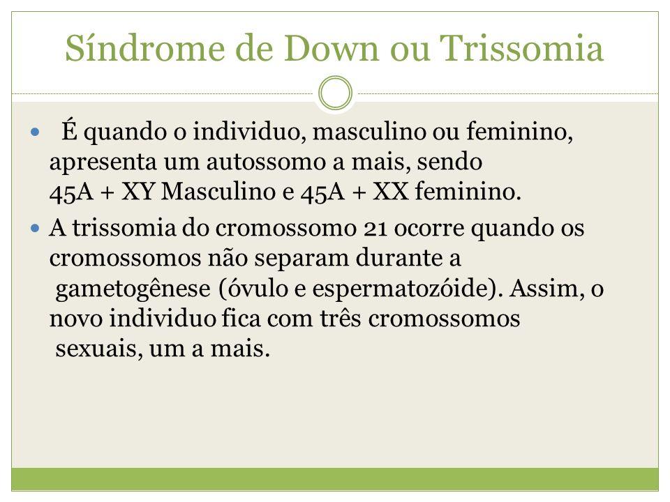Síndrome de Down ou Trissomia É quando o individuo, masculino ou feminino, apresenta um autossomo a mais, sendo 45A + XY Masculino e 45A + XX feminino