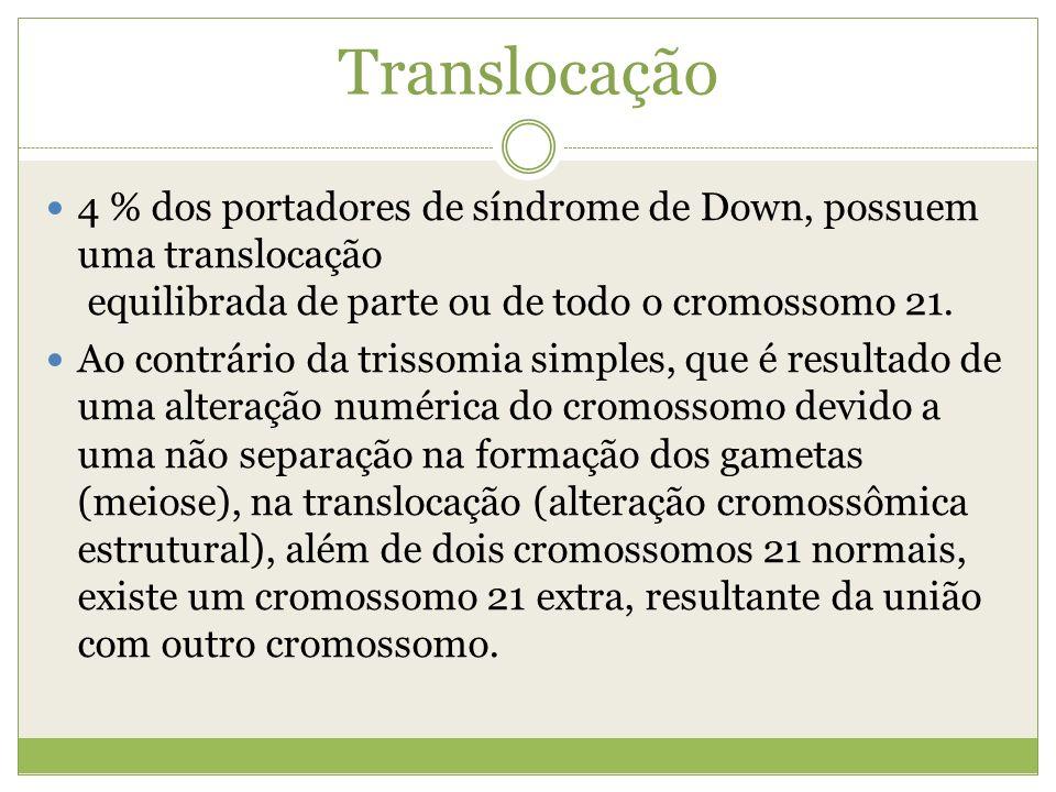 Translocação 4 % dos portadores de síndrome de Down, possuem uma translocação equilibrada de parte ou de todo o cromossomo 21. Ao contrário da trissom